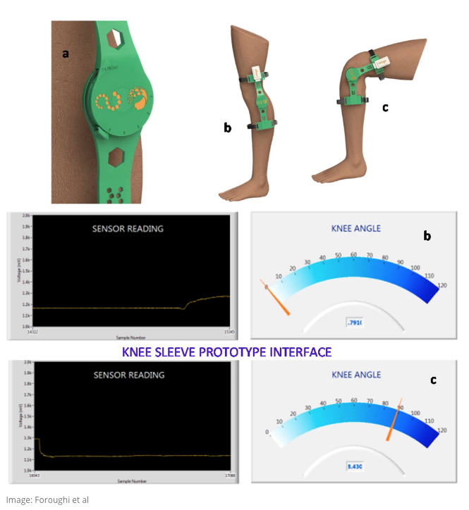 An image of sensor measurements that can determine when a knee is bent or straight